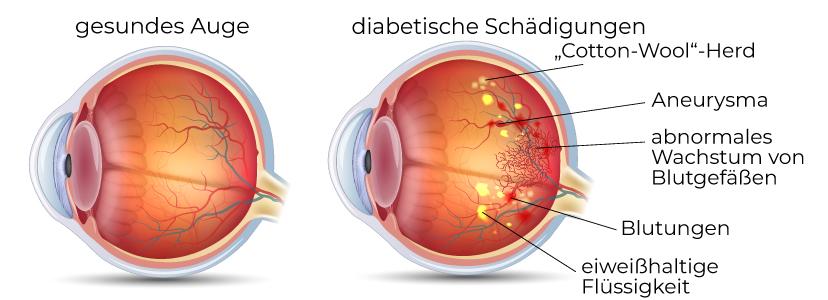 Veränderungen des Auges bei Diabetes mellitus
