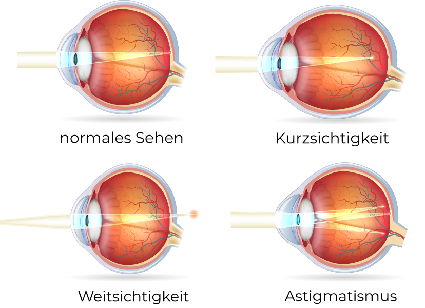 Fehlsichtigkeiten des Auges