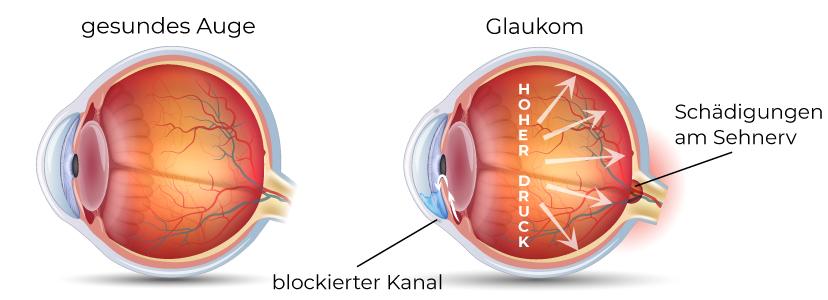 Veränderungen der Auges bei Glaukomen