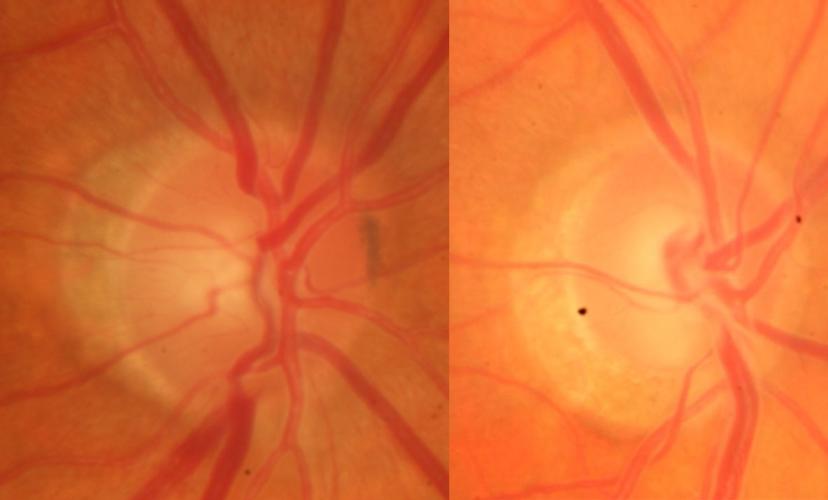 Bildaufnahme Augenhintergrund